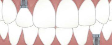 Voyage : les bénéfices cachés des implants dentaires